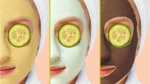face masks for acne